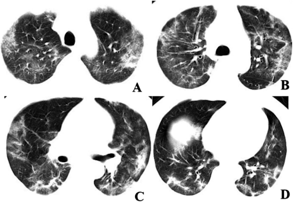 hest CT scans of a 60-year-old male with COVID-19 showing multifocal ground-glass opacities and mixed consolidation in the peripheral area of both lungs. DNA tests returned negative for 2019-nCoV until the eight day after presentation