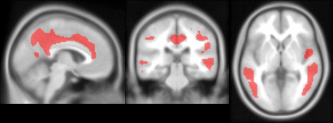 PET images show significant negative associations between PiB and FDG in the cingulate, temporal cortex, parietal cortex and precuneus.