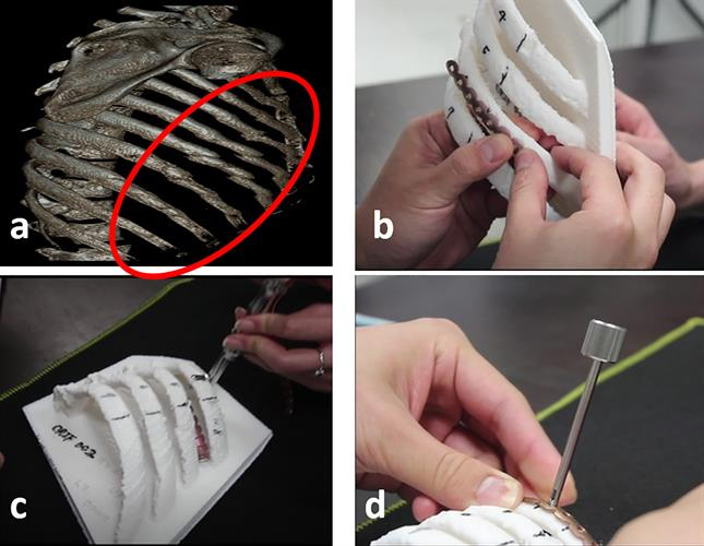 3D reconstruction of chest CT scans and model of 3D-printed rib